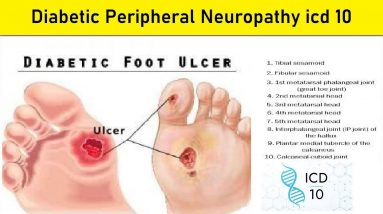 diabetic peripheral neuropathy icd 10