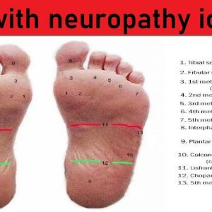 dm with neuropathy icd 10